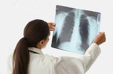 Заболевания легких.